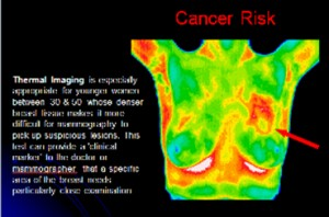 Cancer Risk :  patient presenting with mass in left upper breast