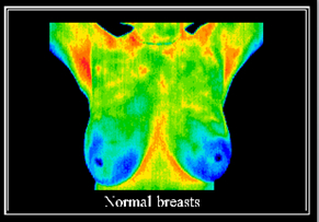 Normal Breast Thermogram